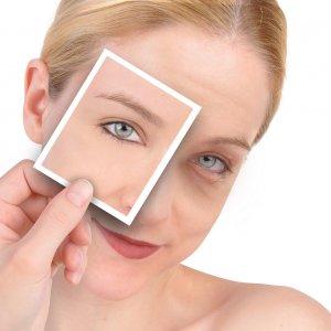 Мешки под глазами лечение в домашних условиях