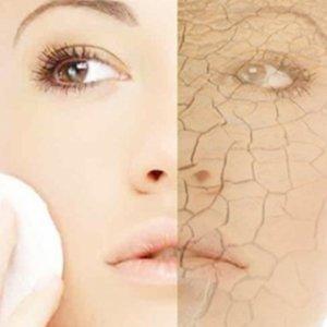Сухость кожи (ксероз) - причины, лечение и осложнения при сухости кожи
