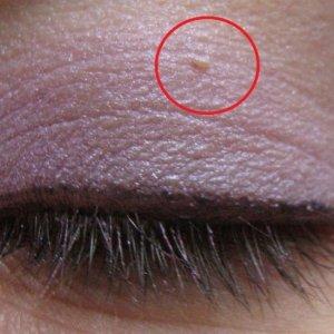 Папиллома на веке глаза: как удалить, фото, лечение в домашних условиях