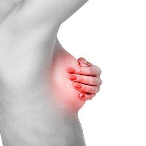 Диффузная фиброзно-кистозная мастопатия молочных желез: что это такое, признаки, лечение