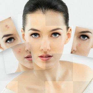 Перекись водорода для кожи лица - от пятен морщин и прыщей