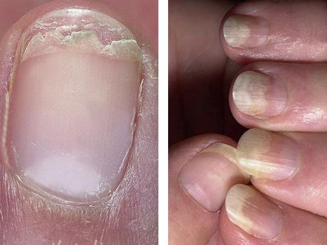 Почему слоятся ногти на руках причины и лечение народными средствами