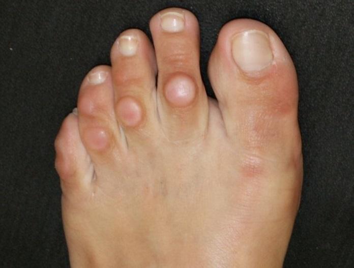 Как быстро вылечить мозоль на пальце ноги в домашних условиях