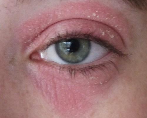 Сушит кожу вокруг глаза