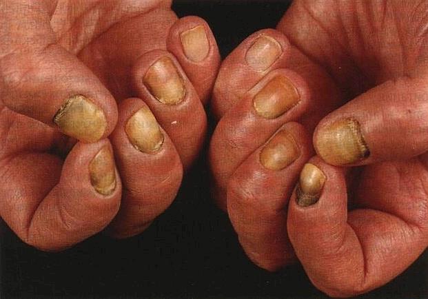 Народные средства от грибка ногтей на руках – 8 рецептов