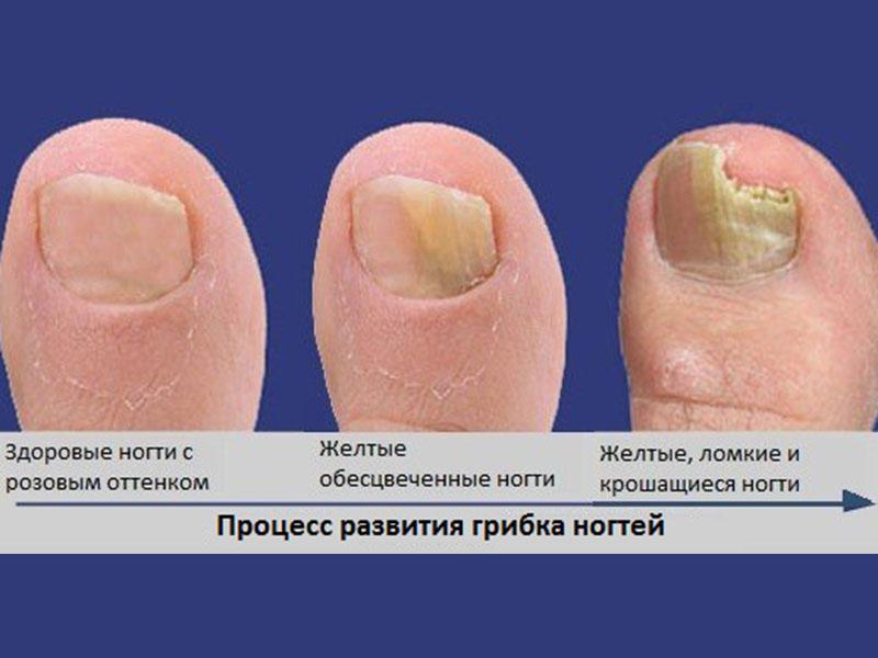 Лучшее средство против грибка ногтей на руках