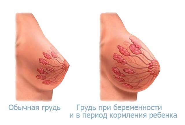 Почему наливается и болит грудь: причины набухания молочных желез