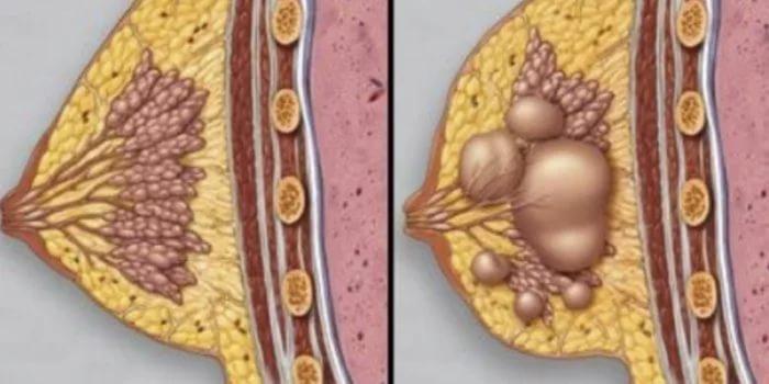 Диффузная мастопатия понятие и лечение в домашних условиях