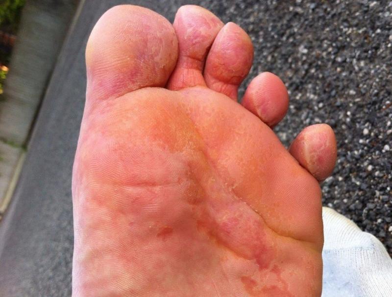 Зуд между пальцами ног чем лечить народными средствами