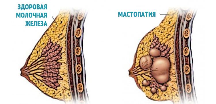 Диффузная фиброзно-кистозная мастопатия молочных желез и ее лечение