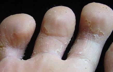 Пальцы на ногах чешутся и шелушатся