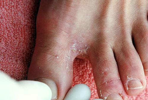 Лечение грибка стопы народными средствами. Чем лечить грибок стопы в домашних условиях.