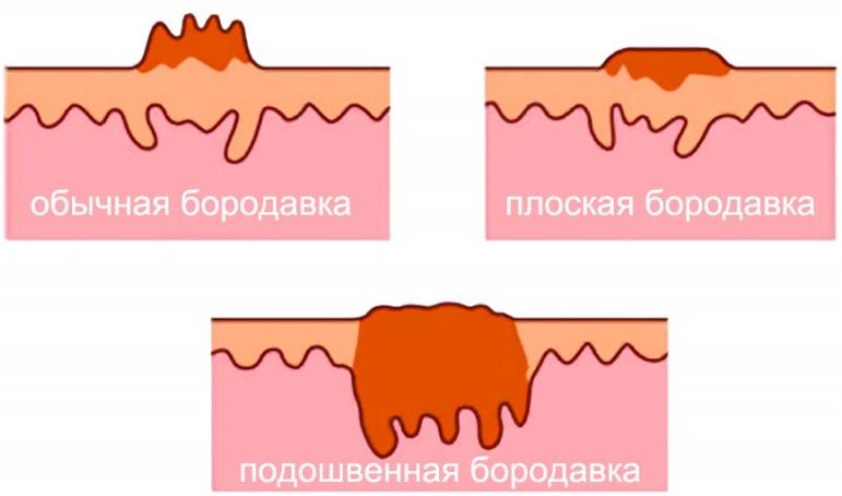 Удаление папиллом жидким азотом