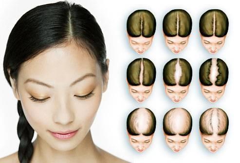 Гормональное выпадение волос у женщин: как лечить, причины