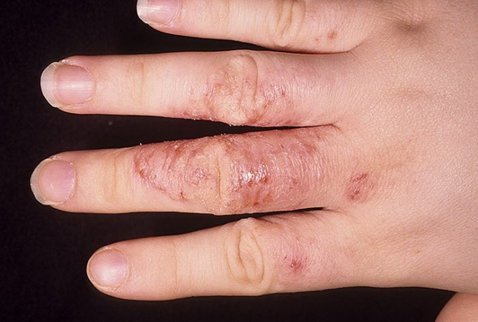 Мазь от грибка ногтей на руках — Грибок Ногтей